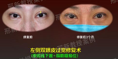 上海有名的双眼皮修复专家预约排行榜大全